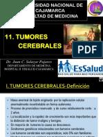 11 Tumores Cerebrales 2016