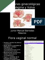 infecciones de vulva y vagina.pptx