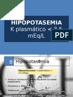 Hipopotasemia y Hiperpotasemia