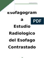 ESOFAGOGRAMA MONOGRAFIA TERMINADO