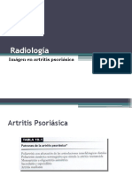 7. Artritis psoriásica