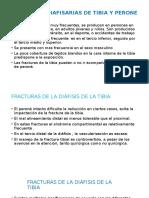 Fracturas Diafisarias de Tibia y Perone