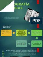 RX-TORAX