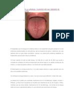 Diagnóstico Por La Lengua