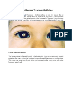 Retinoblastoma Treatment Guidelines