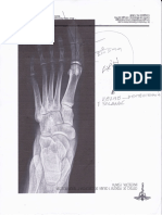 Osteotomia 1 Falange