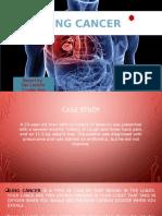 lung cancer.pptx