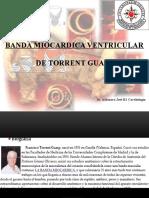 Banda Miocardica Ventricular Dr Francisco Guasp