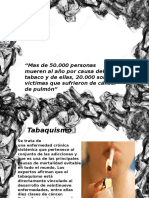 Tabaquismo - Cancer