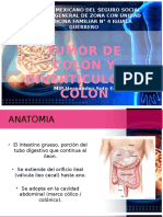 Tumor y Diverticulo de Colon
