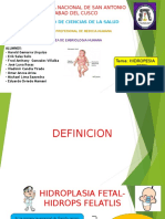 Hidrops Fetal