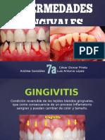 enfermedades gingivales