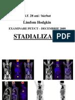 Lh Stadializare Si Evaluarea Raspunsului La Tratament