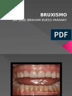bruxismo-160415033305