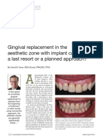 Gingival Replacement in the Aesthetic Zone