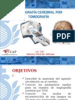 Angiografia Cerebral Por Tc