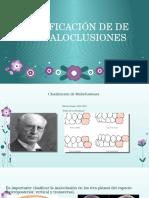 maloclusion-ortodoncia