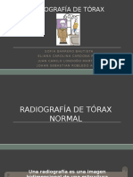 Rx de Tórax Normal y Anormal 2016