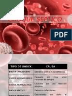 Choque Septico Respuesta Inmunologica