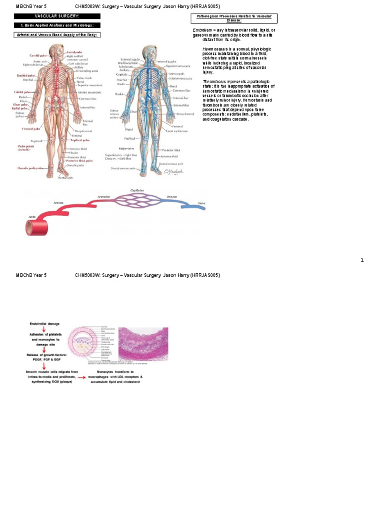 General Surgery Notes - Vascular Surgery | Thrombosis | Ischemia