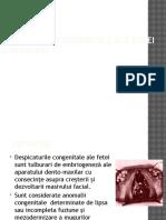 Malformatii Congenitale Ale Buzei Superioare