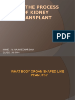 How the Process of Kidney Transplant
