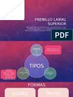 Frenillo Labial Superior