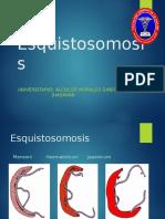 Esquistosomosis