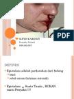 Presentasi Epistaksis.pptx