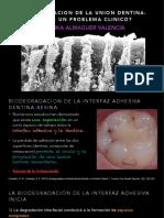 Biodegradation of Resin-Dentin Bonds- A Clinical Problem?