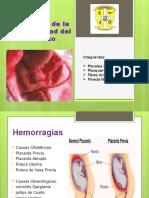 HEMORRAGIA SEGUNDA MITAD DEL EMBARAZO