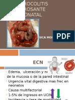 enterocolitisnecrosanteneonatal-130113205605-phpapp01
