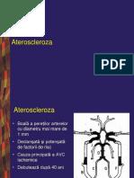 Boli Vasculare Cerebrale Ischemic