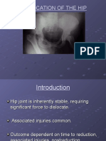 Dislocation of Hip-1