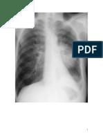 radiografii cancer bronhopulmonar.doc