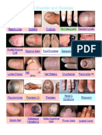 Nail Disorder and Diseases