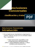 maloclusionestransversales-140415055838-phpapp02