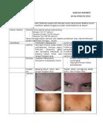 Acne Steroid vs POF