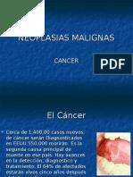 NEOPLASIAS MALIGNAS.Cancer.ppt