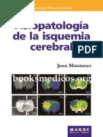 Fisiopatologia de La Isquemia Cerebral