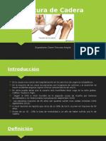 Fractura de Cadera (PPT)