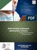 EPOC - Equipo 2
