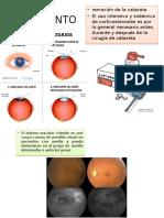oftalmo cuarta
