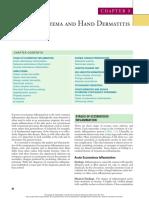 Eczema y Dermatitis de La Mano