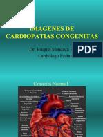 Cardiopatia Congenita completo