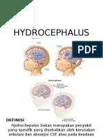 Hydrocephalus - pipo