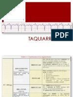 Clase 5- Taquiarritmias 2015