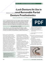 160685949-The-Swing-Lock-Denture-Its-Use-in-Conventional-Removable-Partial-Denture-Prosthodontics.pdf