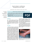 II) Alergia a Ciprofloxacino