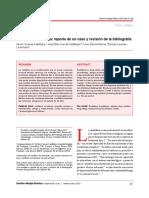 iii) ALERGIA A RANITIDINA.pdf